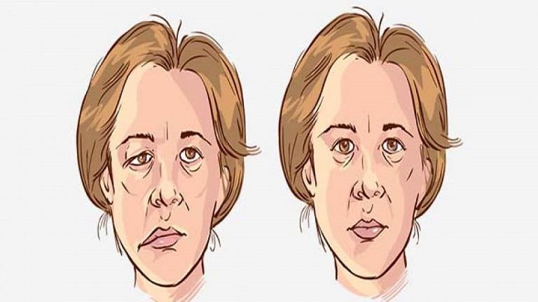 Liệt dây thần kinh 7 là bệnh phổ biến