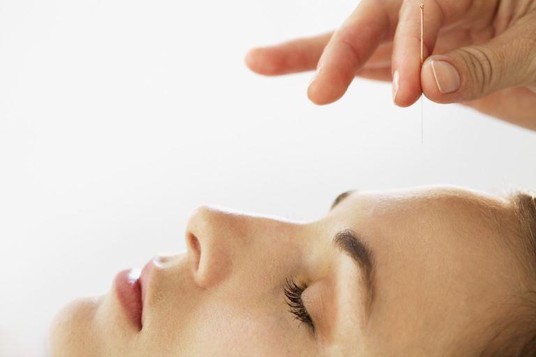 Châm cứu giúp thư giãn cơ bắp, thúc đẩy khí huyết lưu thông, đồng thời kích thích sản xuất các hormone giảm đau và làm dịu hệ thần kinh trung ương
