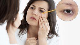 Tình trạng mất ngủ khiến cho các mạch máu bị thu hẹp lại và nổi rõ hơn, tuần hoàn máu tới mắt kém, làm cho vùng da này trở nên xanh xao và tối màu đi.