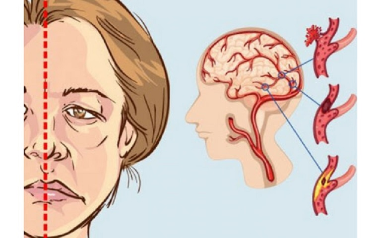 Nguyên nhân chính dẫn đến liệt 7