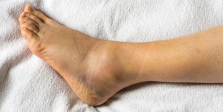 Dấu hiệu nhận biết bị trẹo chân là sưng, đau, bầm tím và lệch khớp