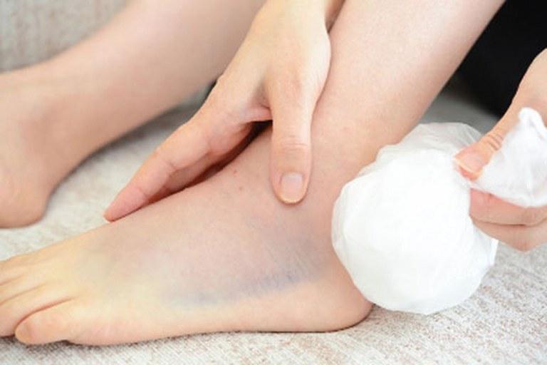 Cách xử lý khi bị trẹo chân tốt nhất là nên chườm đá lạnh rồi đưa bệnh nhân đến bệnh viện kiểm tra