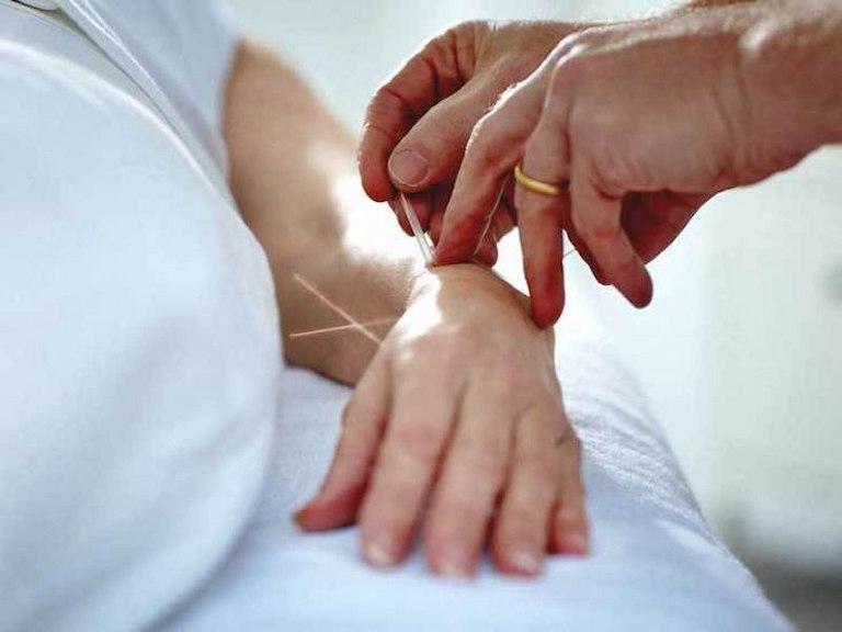 Châm cứu huyệt Đại Lăng đúng cách triệu chứng bệnh sẽ suy giảm nhanh chóng