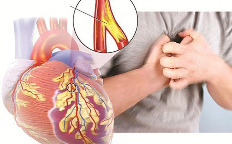 Thiểu năng động mạch vành là một bệnh lý nguy hiểm